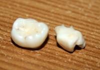 Pārtikas produktos atrasti netīri nagi un cilvēka zobs